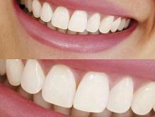 ساخت دندان مصنوعی در یک روز در شیپور-عکس کوچک