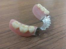 دندانسازی صفری در شیپور-عکس کوچک