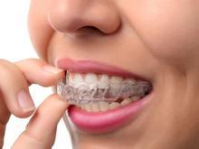 ساخت انواع محافظ دندان (نایت گارد ) در شیپور-عکس کوچک