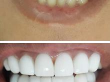 تخفیف ویژه لمینیت و کامپوزیت زیبایی دندان  در شیپور-عکس کوچک