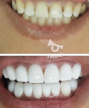 تخفیف ویژه لمینیت و کامپوزیت زیبایی دندان  در گروه خرید و فروش خدمات در تهران در شیپور-عکس1