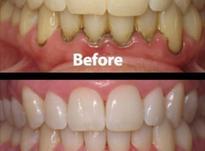 جرم گیری دندان با 50درصد تخفیف در شیپور-عکس کوچک