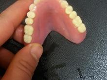 ساخت دندان مصنوعی المانی معاوضه با شاه طوطی در شیپور-عکس کوچک