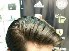 ترمیم موی اقایان به روش پروتزهای هاݪیوودی در شیپور-عکس کوچک