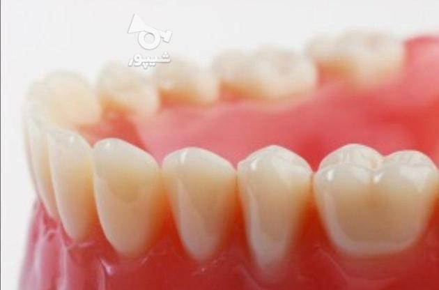 دندانسازی پارسا. ساخت انواع دندان مصنوعی در گروه خرید و فروش خدمات در تهران در شیپور-عکس1