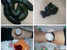 حجامت و زالو درمانی در شیپور-عکس کوچک