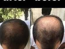 دیگر نگران ریزش مو و طاسی سر خود نباشید  در شیپور-عکس کوچک