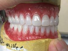 دندانسازی لابراتوار پروتز دندان در شیپور-عکس کوچک