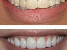 سفید کردن دندان با کامپوزیتهای سوپربلیچ در شیپور-عکس کوچک