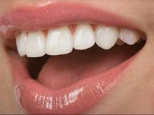دندان مصنوعی قیمت بسیار مناسب در شیپور-عکس کوچک