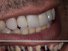 کامپوزیت   دندان در شیپور-عکس کوچک