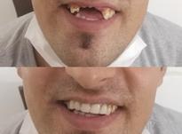 دندان سازی خیریه تعمیر وساخت دندان مصنوعی در شیپور-عکس کوچک