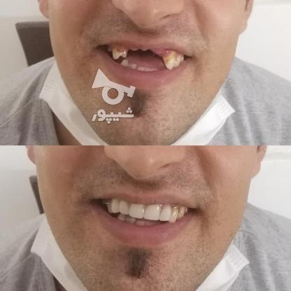 دندان سازی خیریه تعمیر وساخت دندان مصنوعی در گروه خرید و فروش خدمات و کسب و کار در تهران در شیپور-عکس1