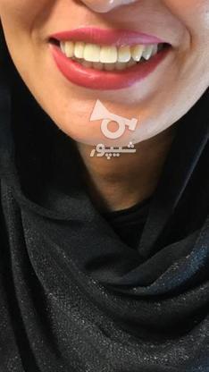 کاشت ایمپلنت توسط متخصص سعادت آباد در گروه خرید و فروش خدمات و کسب و کار در تهران در شیپور-عکس1