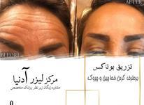 لیزر موهای زائد بدن - تزریق ژل و بوتاکس - پاکسازی پوست  در شیپور-عکس کوچک