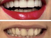 دندانپزشکی بدون درد و مدرن در شیپور-عکس کوچک