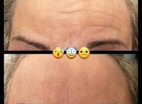 درمان ریزش مو و چین و چروک در شیپور-عکس کوچک