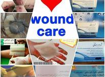 زخم بستر  زخم دیابت در شیپور-عکس کوچک