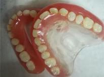 دندان ساز مصنوعی در شیپور-عکس کوچک