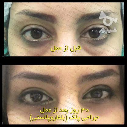 بلفاروپلاستی جراحی زیبایی افتادگی پلک در گروه خرید و فروش خدمات و کسب و کار در تهران در شیپور-عکس5