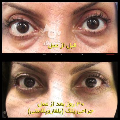 بلفاروپلاستی جراحی زیبایی افتادگی پلک در گروه خرید و فروش خدمات و کسب و کار در تهران در شیپور-عکس7
