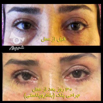 بلفاروپلاستی جراحی زیبایی افتادگی پلک در گروه خرید و فروش خدمات و کسب و کار در تهران در شیپور-عکس3
