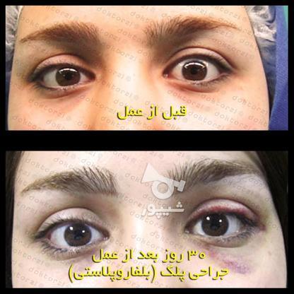 بلفاروپلاستی جراحی زیبایی افتادگی پلک در گروه خرید و فروش خدمات و کسب و کار در تهران در شیپور-عکس6