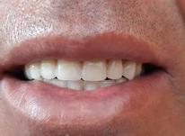 ساخت دندان مصنوعی در شیپور-عکس کوچک