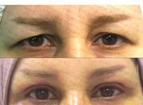 درمان افتادگی پلک با روش غیر جراحی در شیپور-عکس کوچک