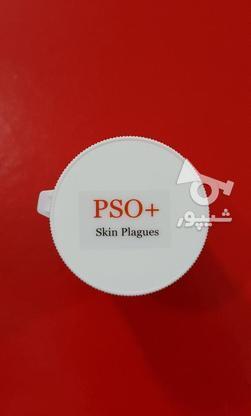 کرم درمان پسوریازیس ، اگزما و خشکی پوست  ( ارسال رایگان ) در گروه خرید و فروش لوازم شخصی در تهران در شیپور-عکس1