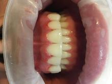 ترمیم دندان قیمت مناسب در شیپور