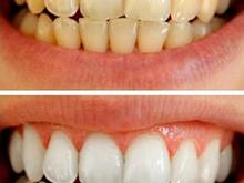 پودر جرم گیری سفید کننده دندان  در شیپور