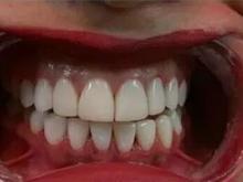 کامپوزیت ونیر دندان در شیپور