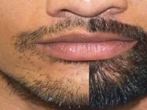 قطره رویش مجدد ریش اصلی در شیپور