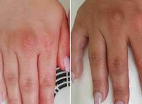 تخفیف پارافین تراپی دست پا صورت همراه پاکسازی در شیپور-عکس کوچک